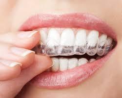 בדיקת שיניים לפני קיבוע גשר